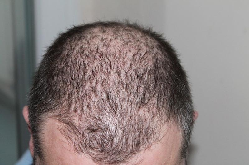Estetik İşlemler, Saç Dökülmesi ve Cilt Bakımı Hakkında
